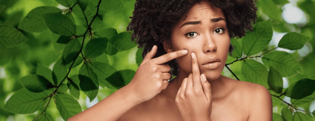 come curare l'acne i giusti cosmetici